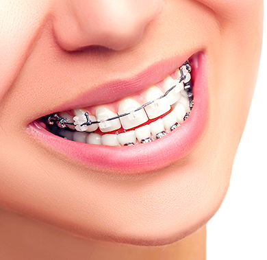 clear braces treatment options in Arizona.