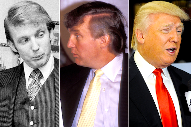 history of trump hair transplant